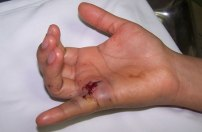 lesiones-traumaticas